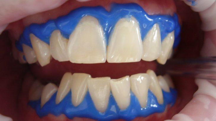 laser-teeth-whitening-716468_1280